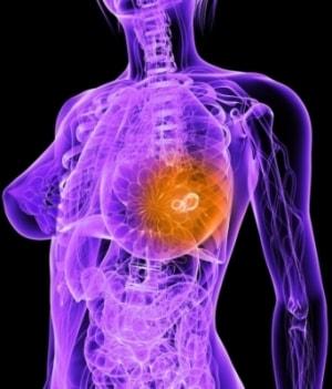 Нужно ли лечить болезненность груди и что должно насторожить в-min